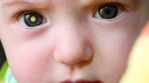 Một số bệnh về mắt có thể gây tử vong