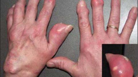 Tìm hiểu về bệnh gout tấy đỏ, và đau đớn