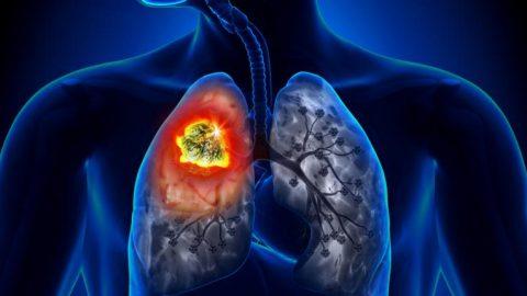 Ung thư phổi: Nguy hiểm nhưng có thể điều trị