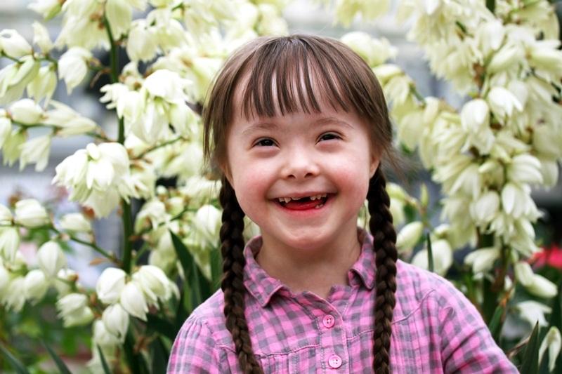 Trẻ mắc hội chứng Down có các đặc điểm hình dạng đặc trưng như: mặt dẹt, hai mắt cách xa nhau mắt xếch và có nếp gấp mí, tai nhỏ, lưỡi dầy và dài, miệng hơi há ra.