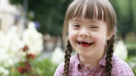 Tìm hiểu về hội chứng Down dạng bệnh bẩm sinh