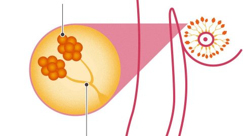 Các giai đoạn của ung thư vú và tiên lượng