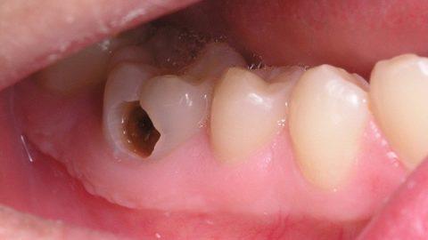 Bệnh sâu răng nên điều trị sao cho nhanh khỏi? đau nhức, khó chịu