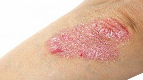 7 lời khuyên chăm sóc da cho bệnh nhân vẩy nến