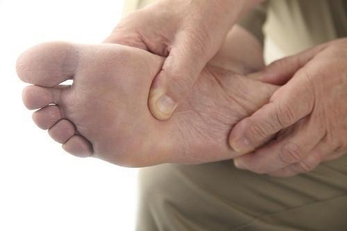 Bệnh tiểu đường ảnh hưởng tới dây thần kinh ở bàn chân, triệu chứng tê sẽ khiến người bệnh không nhận biết được những chấn thương hoặc nhiêm trùng ở chân