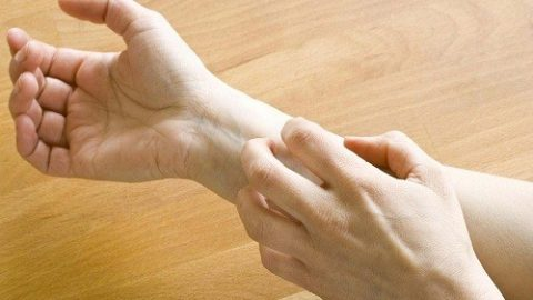 Chung sống với bệnh eczema không thể điều trị dứt điểm