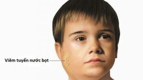 Cách chữa quai bị nhanh khỏi gặp ở mọi lứa tuổi