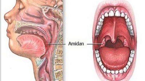 Nguyên nhân viêm amidan với virus, vi khuẩn gây bệnh