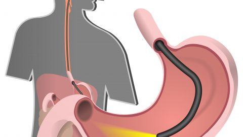 Nội soi dạ dày gây mê có nguy hiểm không?