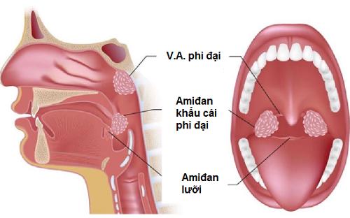 Viêm VA là bệnh thường gặp và gây ảnh hưởng tới sức khỏe nên cần điều trị sớm