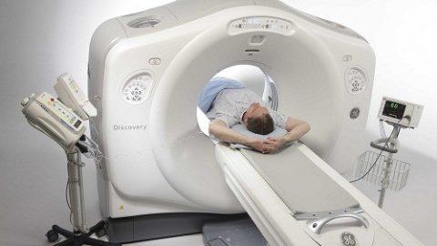 Chụp CT có ảnh hưởng gì?tác hại xấu cho sức khỏe