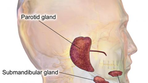 Viêm tuyến nước bọt: triệu chứng và điều trị