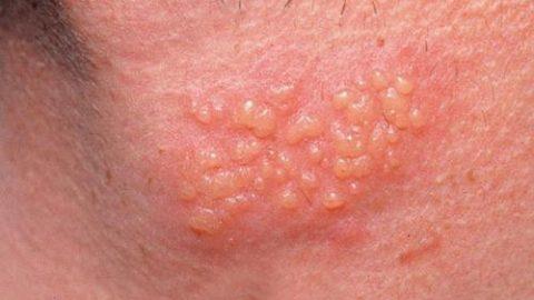 Bệnh mụn rộp là gì? Nguyên nhân triệu chứng và cách điều trị ra sao?