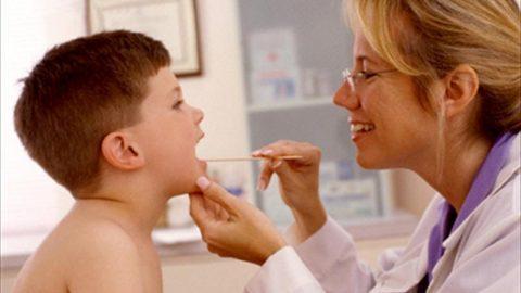 Cắt viêm amidan khi nào? cách phòng ngừa viêm amidan