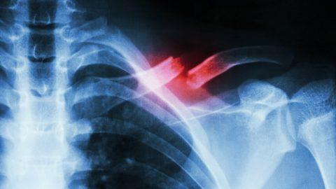 Kết xương trong gãy xương đòn là gì, các phương pháp