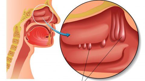 Nội soi cắt polyp mũi gây khó thở, giảm hoặc mất khứu giác
