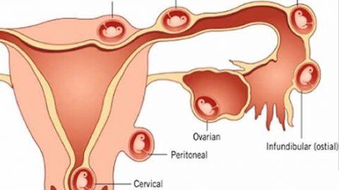 Phẫu thuật nội soi chửa ngoài tử cung bảo toàn khả năng