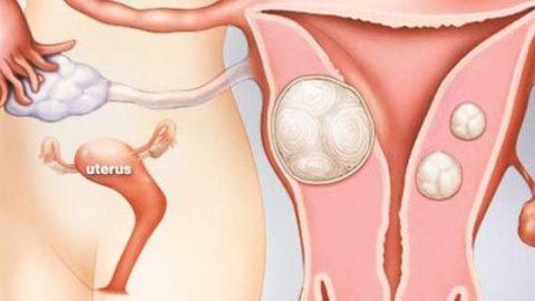 hỗ trợ điều trị bệnh u xơ tử cung bóc tách khối u