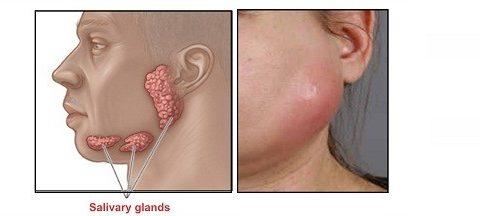 Triệu chứng bệnh viêm tuyến nước bọt