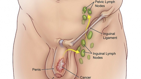 Ung thư dương vật – nguyên nhân, triệu chứng và cách điều trị