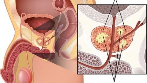 Ung thư tuyến tiền liệt: Nguyên nhân, triệu chứng