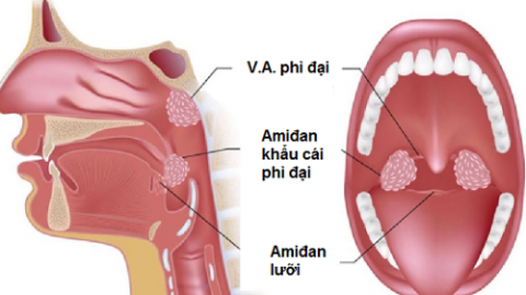 Viêm VA quá phát ảnh hưởng tới sức khỏe như thế nào?