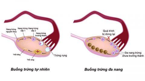 Điều trị buồng trứng đa nang hiệu quả ở thu cúc