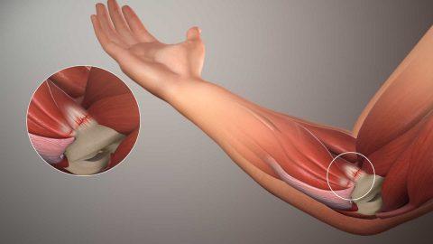 Đau tay trái có liên quan tới bệnh tim hay không?