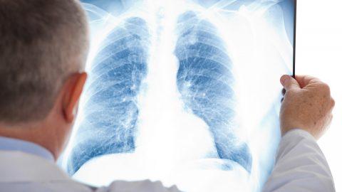 Cách phòng lao phổi tái phát ức đề kháng suy yếu