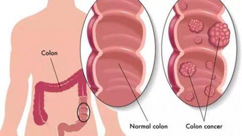 Bệnh polyp dạ dày bệnh khó phát hiện và điều trị sớm