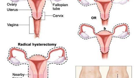Cắt bỏ tử cung và những điều cần biết