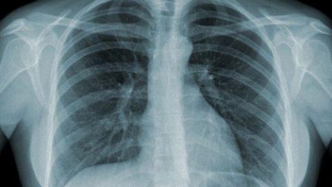 Chụp X-quang có ảnh hưởng đến sức khỏe không?