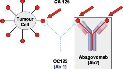 Xét nghiệm CA 125 là gì? ung thư buồng trứng