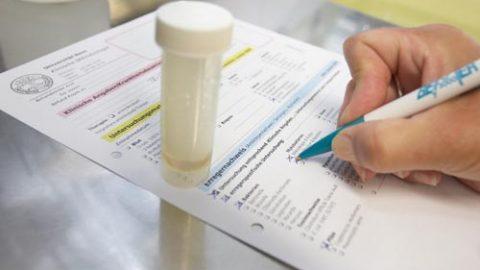 Xét nghiệm chẩn đoán lao phổi lấy mẫu bệnh phẩm