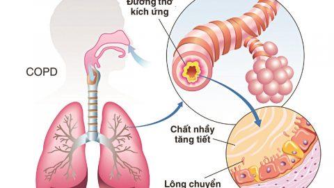 Bệnh phổi tắc nghẽn mạn tính ở người già cần lưu ý điều gì