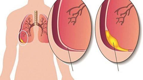 Bệnh phổi có nước là gì?nguyên nhân gây bệnh