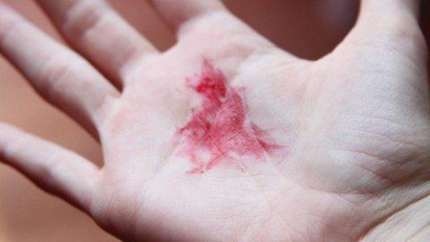Ho ra máu có phải bị lao phổi?