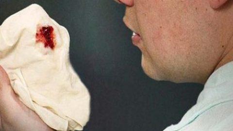 Ho ra máu – dấu hiệu của nhiều bệnh