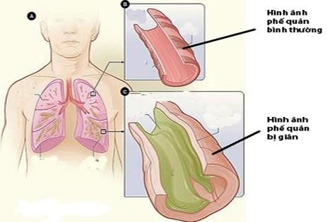 Giãn phế quản là tình trạng các phế quản của phổi bị giãn ra khó hồi phục, đặc biệt là các phế quản trung bình.