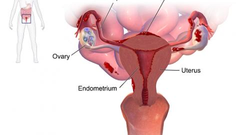 Nguyên nhân gây lạc nội mạc tử cung