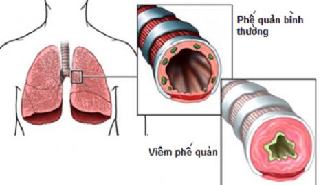 Bệnh thường gặp ở phổi khi chuyển mùa