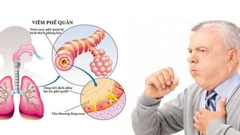 Mối liên hệ giữa viêm phổi và viêm phế quản