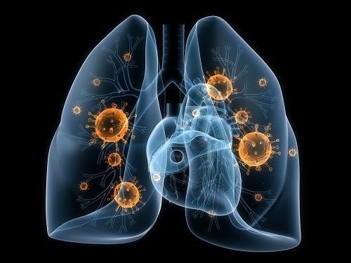 Viêm phổi, tình trạng phổi bị nhiễm trùng, có thể là nguyên nhân gây đau khi thở.