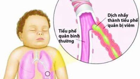 Viêm phế quản co thắt ở trẻ em và cách điều trị