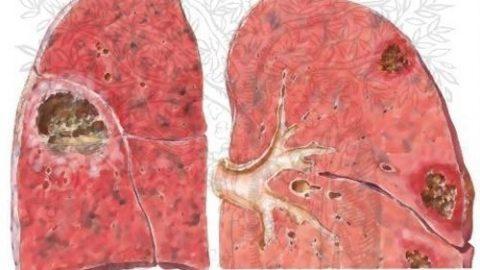 Áp xe phổi là gì?nhận biết sớm căn bệnh này