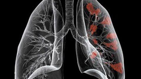 Chụp CT phổi cần chuẩn bị gì trước khi thực hiện