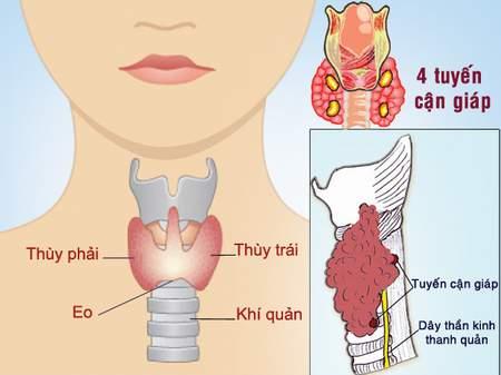 U tuyến giáp nguy hiểm cần được phát hiện sớm và điều trị hiệu quả