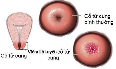 Viêm lộ tuyến cổ tử cung xử trí như thế nào?