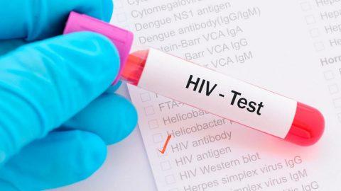 Xét nghiệm HIV ở đâu? có nguy cơ tử vong cao