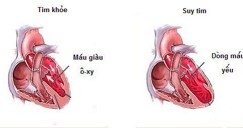 8 điều ít biết về bệnh suy tim